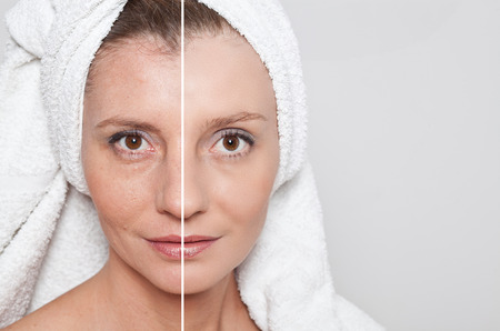 Beauty concept - skin care, anti-aging procedures, rejuvenation, lifting, tightening of facial skin