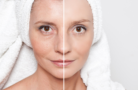 Beauty concept - skin care, anti-aging procedures, rejuvenation, lifting, tightening of facial skin Фото со стока - 47693015