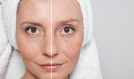 aging process: Beauty concept - skin care, anti-aging procedures, rejuvenation, lifting, tightening of facial skin