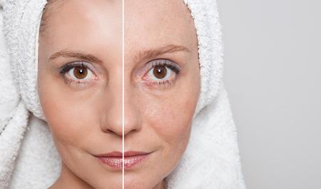 Schoonheid concept - huidverzorging, anti-aging procedures, verjonging, tillen, het aanhalen van de gezichtshuid