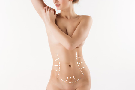 abdominal: Body correction with the help of plastic surgery on  white background. Woman belly marked out for cosmetic surgery or liposuction Stock Photo