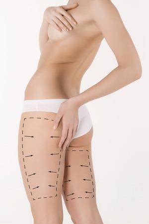 Entfernung von Cellulite Plan. Die schwarzen Markierungen auf Karosserie der jungen Frau Vorbereitung für plastische Chirurgie. Konzept der Körperkorrektur