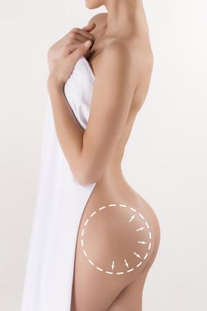 mujer celulitis: El cuerpo de la mujer con las flechas de giro. La cirugía plástica, nutrición saludable, la liposucción, el deporte y el concepto de eliminación de la celulitis