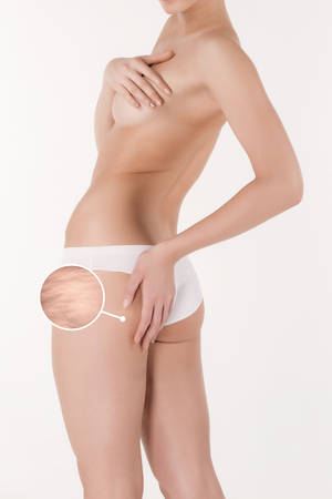 pinches: Woman pinches her thigh to control cellulite.  Fat  lose, liposuction and cellulite removal concept. Stock Photo
