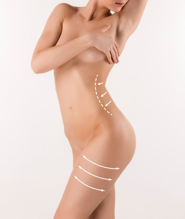 Corrección de cuerpo con la ayuda de la cirugía plástica en el fondo blanco, vista lateral. Mujer vientre marcado por la cirugía estética o la liposucción