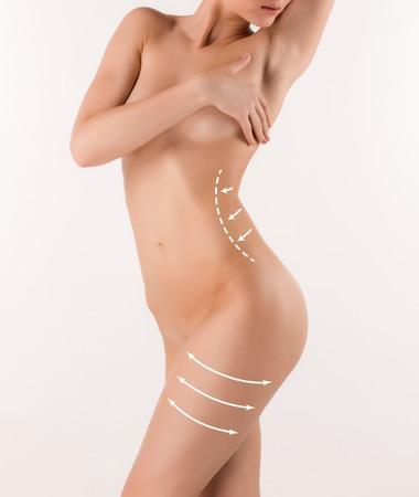 cuerpo humano: Corrección de cuerpo con la ayuda de la cirugía plástica en el fondo blanco, vista lateral. Mujer vientre marcado por la cirugía estética o la liposucción
