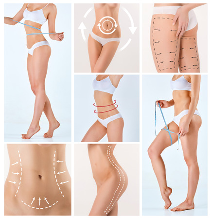 mujer celulitis: Collage de cuerpo femenino con las flechas de giro. Perder grasa, la liposucción y el concepto de eliminación de la celulitis.