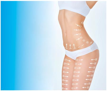 O plano de remoção de celulite. Marcas brancas no corpo da jovem mulher se preparando para a cirurgia plástica. Conceito de emagrecimento, lipoaspiração, levantamento de fios Foto de archivo