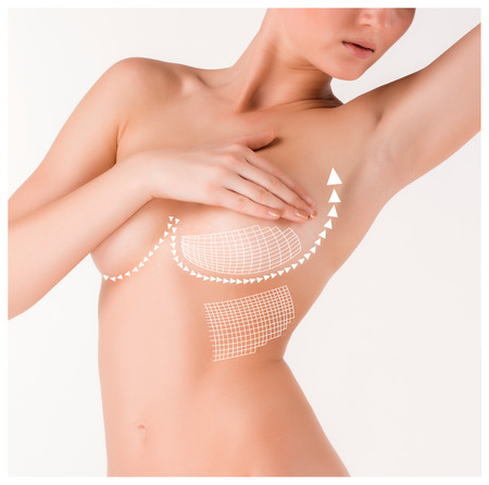breast beauty: Boobs correction with help of plastic surgery on white background. Concept of thread-lifting