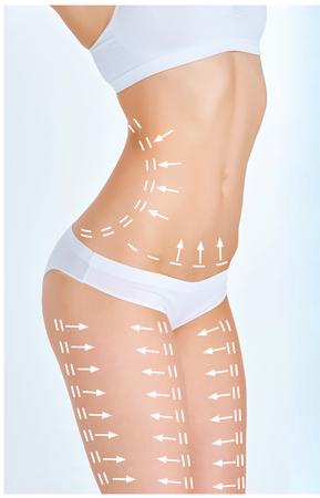 El plan de eliminación de la celulitis. marcas blancas en el cuerpo de la mujer joven que se prepara para la cirugía plástica. Concepto de adelgazamiento, la liposucción, levantamiento de hebra