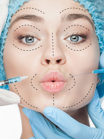 Die schöne weibliche Gesicht mit Linien während der plastischen Chirurgie Betrieb der Kosmetologie Standard-Bild