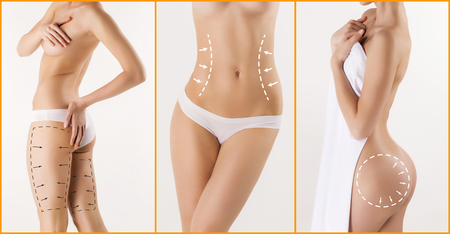 Body correction with the help of plastic surgery on white background. Woman belly marked out for cosmetic surgery or liposuction Stock Photo
