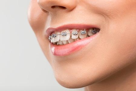 Belle jeune femme avec des accolades dents Banque d'images - 73707767