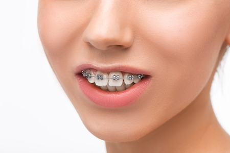 Beautiful young woman with teeth braces Stock Photo