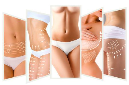 Die Cellulite-Entfernung zu planen. Weiße Markierungen auf Karosserie der jungen Frau Standard-Bild