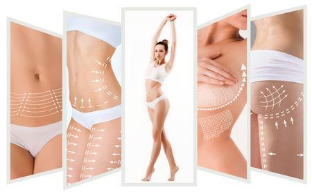 De cellulitis verwijdering plan. Witte aftekeningen op de jonge vrouw lichaam
