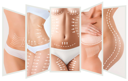 Il piano di rimozione della cellulite. Macchie bianche sul corpo giovane donna Archivio Fotografico - 73971806