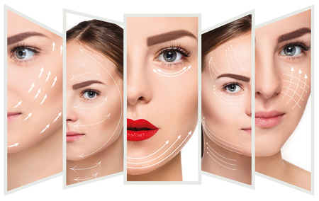 reinforcement: The young female face. Antiaging and thread lifting concept Stock Photo
