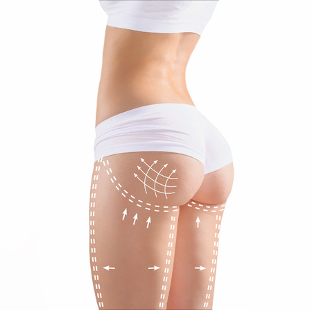Marks on the womens buttocks, waist and legs before plastic surgery.