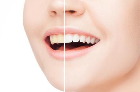 Los dientes femeninos antes y después del blanqueamiento. Foto de archivo - 91140489