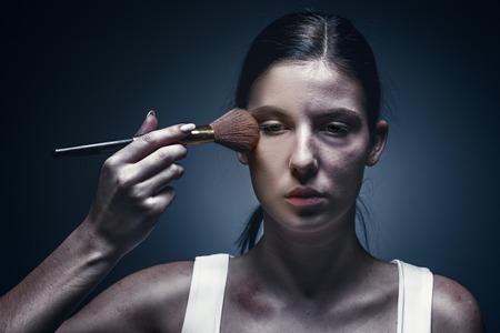 Bliska portret płaczącej kobiety z posiniaczoną skórą i podbitymi oczami