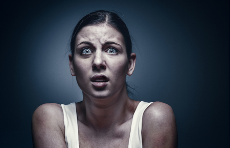 Close up portrait of a crying woman with bruised skin and black eyes Imagens - 92345481