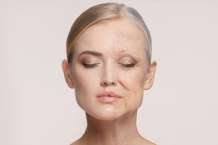 Comparación. Retrato de mujer hermosa con problema y piel limpia, concepto de envejecimiento y juventud, tratamiento de belleza