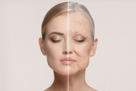 Comparison. Portrait of beautiful woman with problem and clean skin, aging and youth concept, beauty treatment Banco de Imagens - 95799631