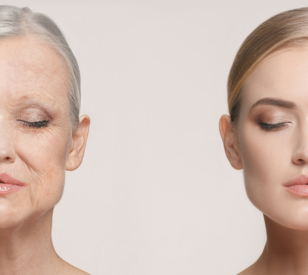 Comparison. Portrait of beautiful woman with problem and clean skin, aging and youth concept, beauty treatment Reklamní fotografie - 95799632