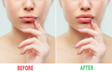 Before and after lips filler injections. Beauty plastic. Beautiful perfect lips with natural makeup. Stock fotó - 98833245