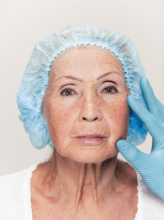 The surgeon doing skin check on mid age woman before plastic surgery. Senior female model. plastic surgery, lifting, aging concept