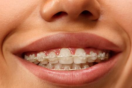 Belle jeune femme avec des accolades de dents se bouchent Banque d'images