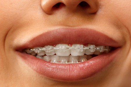 Beautiful young woman with teeth braces close up