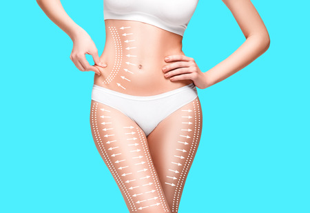 Female body with the drawing arrows on it. Fat lose, liposuction and cellulite removal concept.