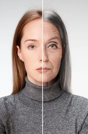 Comparison. Portrait of beautiful woman with problem and clean skin, aging and youth concept, beauty treatment and lifting. Before and after concept. Youth, old age. Process of aging and rejuvenation Stock fotó