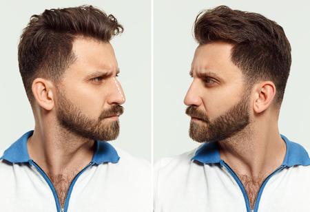 Il volto maschile prima e dopo l'intervento di chirurgia estetica del naso.