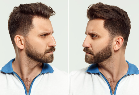 The male face before and after cosmetic nose surgery. Stock Photo - 115528240