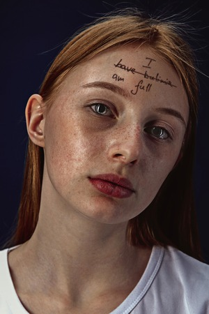 Portrait of young woman with mental health problems. The image of a tattoo on the forehead with the words I have bulimia-Im full.Concept of hidding the true feelings, psycological trouble, treatment. 写真素材