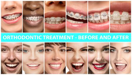Beautiful close up male and female portraits. Concept of beauty, correction, treatment and teeth whitening. Braces, veneers, implantation, dentistry. Before and after. Colorful flyer for your advertising.
