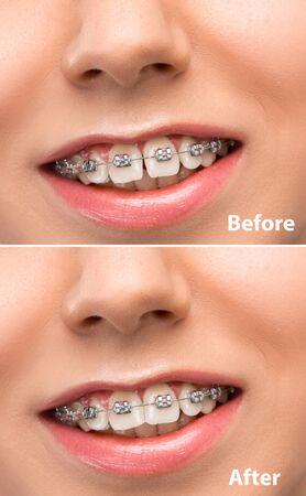 Beau portrait de femme en gros plan. Concept de beauté, correction, traitement et blanchiment des dents. Placages, implantation, dentisterie. Appareils dentaires avant et après. Flyer coloré pour votre publicité. Banque d'images