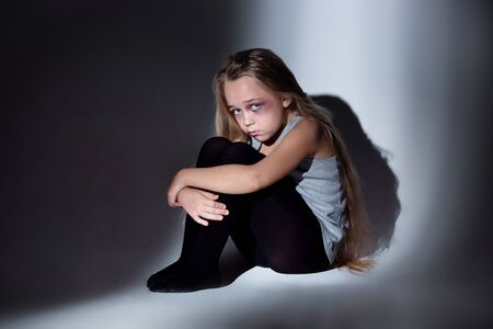Sad and frightened little girl with bloodshot, bruised eyes sitting scared. Concept of child violence, domestic abuse. Sad, depressed being victim of parents and their agression. Childrens rights. 스톡 콘텐츠 - 133752496