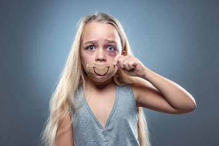 Sad and frightened little girl with bloodshot, bruised eyes and false smile on her mouth. Concept of child violence, domestic abuse. Depressed being victim of parents. Illusion of happy childhood. Zdjęcie Seryjne