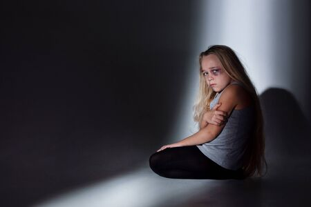 Sad and frightened little girl with bloodshot, bruised eyes sitting scared. Concept of child violence, domestic abuse. Sad, depressed being victim of parents and their agression. Childrens rights.