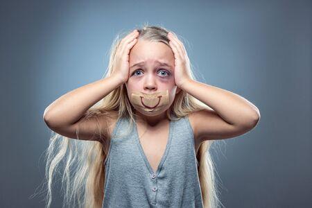 Bambina triste e spaventata con iniettati di sangue, occhi pieni di lividi e falso sorriso sulla bocca. Concetto di violenza sui bambini, abusi domestici. Depresso essere vittima dei genitori. Illusione di un'infanzia felice.