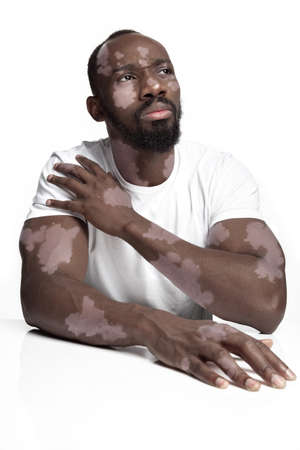 Portrait of african-american man with vitiligo skin. Special skin with depigmentation because of melanin losing. Concept of skincare and healthcare, inclusion and diversity, fashion and beauty.