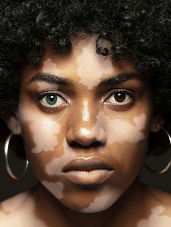Portrait of african-american woman with vitiligo skin. Special skin with depigmentation because of melanin losing. Concept of skincare and healthcare, inclusion and diversity, fashion and beauty.