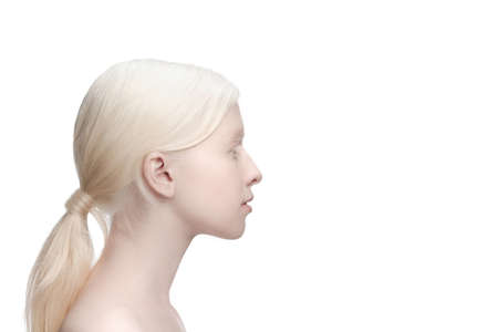 Profile. Portrait of beautiful albino woman isolated on white studio background. Beauty, fashion, skincare, cosmetics concept. Copyspace. Well-kept skin, fresh look. Inclusion and diversity.