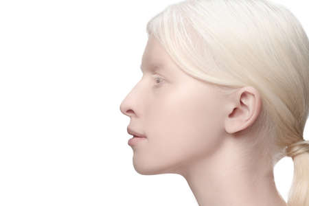 Profile close up. Portrait of beautiful albino woman isolated on white studio background. Beauty, fashion, skincare, cosmetics concept. Copyspace. Well-kept skin, fresh look. Inclusion and diversity.