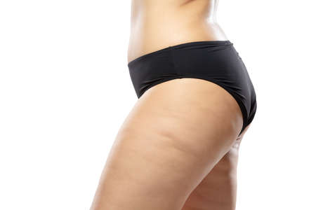 Side view. Overweight woman with fat cellulite legs and buttocks, obesity female body in black underwear isolated on white background. Orange peel skin, liposuction, healthcare and beauty treatment.