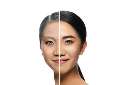 Comparison. Portrait of beautiful asian woman with problem and clean skin, aging and youth concept, beauty treatment and lifting. Before and after. Youth, old age. Process of aging and rejuvenation
